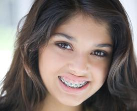 ortodonzia - studio dentistico gaudino